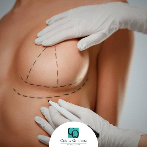 TJSP – Plano de saúde deve custear cirurgia de redução de mamas
